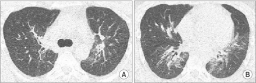 A 29-year-old man who is the monozygotic twin of the person in the case of Figure 1. (A, B) Low dose computed tomograpy (CT) scans showing peribronchovascular mixed ground-glass and reticular opacities in both lungs, which had a nearly identical pattern as the chest CT findings of his twin.