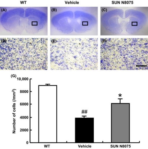 The effects of SUN N8075 on the decreasing numbers of striatal neurons in R6/2 mice. (A–F) Cresyl violet staining performed in coronal sections through the striatum of R6/2 mice; (A, D) wild-type (WT), (B, E) vehicle-treated mice, and (C, F) SUN N8075-treated mice. Scale bar = 50 μm. (G) The numbers of neurons in the striatum were significantly increased in SUN N8075-treated mice. Values are means ± SEM (WT, n = 3; Vehicle group, n = 3; SUN N8075 group, n = 3). ##P < 0.01 versus WT mice (Student's t-test), *P < 0.05 versus vehicle-treated mice (Student's t-test).