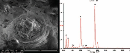 ESEM-EDAX confirmed the same compositions of calcium, phosphorus, oxygen, and carbon in the crystals obtained both from the pulmonary small vessels.