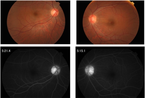 Fundus photograph (upper) and fluorescein angiogram (lower) at the time of relapsing scleritis in Case 1.Note: Both optic discs are mildly hyperemic (upper) with slight hyperfluoresence in the fluorescein angiogram (lower).
