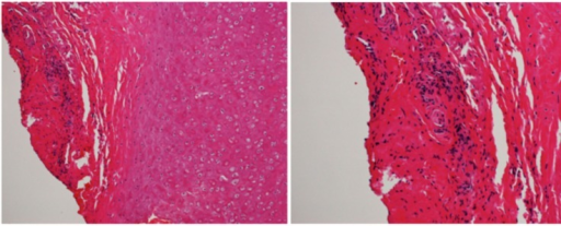 Histologic findings of auricular biopsy specimen.Note: An infiltration of lymphocytes into the periauricular tissue can be seen.