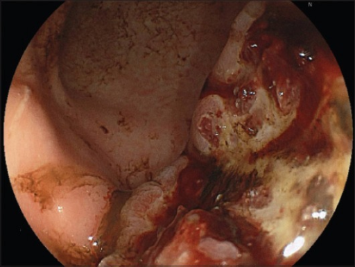 Endoscopic image of an ulcerating and diffuse bleeding adenocarcinoma of the stomach