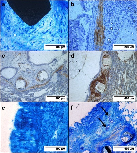 Stent strut (black structure, a) surrounded by mostly spindle-shaped cells embedded in fiber-rich connective tissue (bare metal stent; Richardson blue staining); immunohistochemical staining (brown coloring) with antibodies against smooth muscle myosin (b; bare metal stent), vimentin (c; sirolimus-eluting stent), and smooth muscle actin (d; bare metal stent) identifying the spindle-shaped cells as fibromuscular cells; newly formed epithelium with polygonal cells lining the tracheo-bronchial lumen (e; bare metal stent; Richardson blue staining); cartilage structure within the newly formed tissue (f, arrows; sirolimus-eluting stent; Richardson blue staining)
