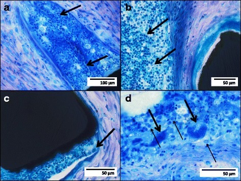 Richardson blue staining of stent struts (black structures) with local inflammatory reactions: granulocyte infiltration (arrows) locally related to a bare metal stent (a); lymphocytic infiltration (arrows) locally related to a sirolimus-eluting stent (b); only a few histiocytes/macrophages (arrow) locally related to a bare metal stent (c); multiple macrophages/histiocytes (light arrows) and foreign-body giant cells (bold arrows) locally related to a sirolimus-eluting stent (d)