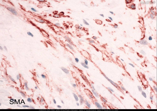 Histopathology: The biopsy shows a non-encapsulated tumor extending beneath the epidermis through the dermis and the subcutis. The tumor is composed of spindle cells with blunt, vesicular nuclei arranged in interweaving fascicles. Characteristic intracytoplasmic paranuclear eosinophilic globules measuring approximately 5 to 9 mm in diameter are noted in the spindle cells.