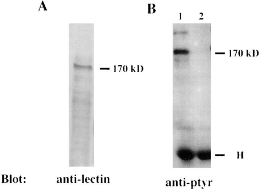 Identification of the 170-kD protein of H. vermiformis which  is dephosphorylated upon contact and invasion by L. pneumophila. (A) Extracts of 107 cell equivalents were subjected to SDS-PAGE and probed  with antilectin mAb (1G7) followed by incubation with HRP-conjugated  anti–mouse secondary antibody. (B) Lysates of 108 cell equivalents were  prepared from uninfected H. vermiformis (lane 1) or infected with L. pneumophila for 5 min (lane 2). Samples were immunoprecipitated with rabbit  antiserum of the 170-kD lectin of E. histolytica. Following SDS-PAGE,  proteins were probed with antiphosphotyrosine (anti-ptyr) antibody and  visualized with an enhanced chemiluminescence kit as described in Materials and Methods. H is heavy chain of immunoprecipitating antibody.