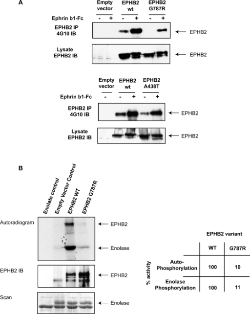 Biochemical characterization of EPHB2 variants.Panel A: Diminished autophosphorylation of EPHB2 G787R variant in response to ephrinB1 stimulation. DU145 cells were transiently transfected with cDNA constructs (empty vector; wild-type, wt; A438T; G787R) and either left unstimulated (−) or stimulated (+) with preclustered ephrinB1-Fc for 30 min. EPHB2 was immunoprecipitated (IP) and immunoblotted (IB) with antiphosphotyrosine (4G10) to evaluate receptor autophosphorylation. The cell lysate was immunoblotted with antiEPHB2 to ascertain that there was equal transfection efficiency. Panel B: Abolished kinase activity of EPHB2 G787R variant. In vitro kinase assays were performed using wild-type EPHB2 or G787R immunoprecipitates and enolase as the exogenous substrate. Prior to imaging or immonoblotting against EPHB2, phosphorylated proteins were separated by gel electrophoresis and stained with coomassie. Autoradiogram showing 32PγATP incorporation in EPHB2 and enolase (upper panel), anti-EPHB2 immunoblot (middle panel) and equal loading of enolase is shown (lower panel). The table shows the relative kinase activity of the wild-type EPHB2 receptor (set to 100%) vs. the G787R variant.