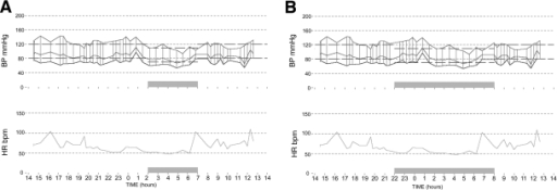 ABPM from an individual patient. Shaded area indicates sleep time. A: Actual sleep time 2:00–7:00 a.m. Mean daytime systolic blood pressure (BP) 124 mmHg; mean nighttime systolic blood pressure 107 mmHg; percent dip 13.7%. B: Preset sleep time 10 p.m.–8 a.m. Mean daytime systolic blood pressure 122 mmHg; mean nighttime systolic blood pressure 117 mmHg; percent dip 4%.