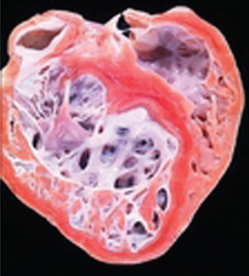 Gross aspect of the explanted heart, showing the characteristic non-compaction involving the inlet and apical portion of the left ventricle but sparing the ventricular septum.