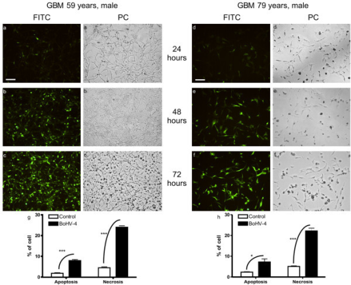 Primary cultures from two human glioblastoma analyzed 24, 48 and 72 hours post BoHV-4EGFPΔTK infection. The cells were visualized with a FITC filter for EGFP expression (a, b, c, d, e, f, bar = 50 μm) and by phase contrast (PC) (ai, bi, ci, di, ei, fi). After 72 hours post infection the cultures were completely infected. CPE induced by infection shows a prevalence of necrosis (g, h, t-test, *** p < 0.001, *p < 0.05).
