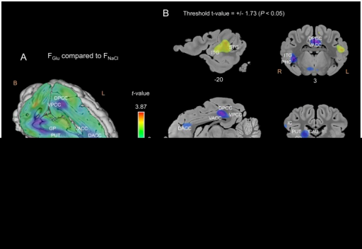Cerebral glucose metabolism (CGM) differences obtained for the FGlu flavour compared to the FNaCl flavour.(A) Three-dimensional skinned representation of the pig's brain with global CGM differences found in the FGluvs FNaCl contrast. The (x y z) coordinates are indicated below the representation. (B) Sagittal and coronal MRI sections showing significant CGM differences in the FGluvs FNaCl contrast. The threshold for significance was set at P<0.05 (uncorrected). The x or y coordinates are indicated below each section. Positive t-values (green, yellow and red) indicate more activation in the FGlu condition than in the FNaCl condition, while negative t-values (blue and purple) indicate more deactivation in the FGlu condition than in the FNaCl condition. F, Front; B, Back; R, Right; L, Left; OFC, orbitofrontal cortex; AMY, amygdala; STG, superior temporal gyrus; PHC, parahippocampal cortex; DACC, dorsal anterior cingulate cortex; VACC, ventral anterior cingulate cortex; VPCC, ventral posterior cingulate cortex. Other abbreviations: see Figures 5 and 6.