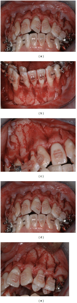 Maxillary and mandibular corticotomy of the buccal side.