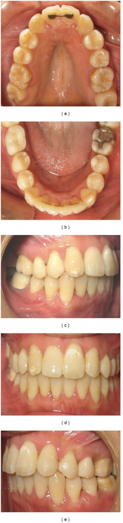 Intraoral photographs 32 weeks after corticotomy.