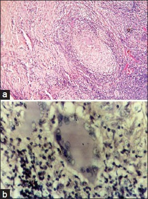 (a) Photomicrograph showing granuloma exhibiting Langhans (H&E stain, ×400) giant cells displaying numerous nuclei arranged in horseshoe pattern. (b) Photomicrograph showing granuloma exhibiting Langhans giant cells displaying numerous nuclei arranged in horseshoe pattern (H&E stain, ×400)