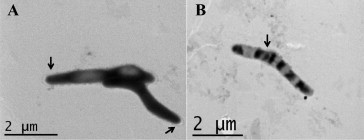 Transmission electron microscopy images of Campylobacter concisus UNSWCD. (A) The bacterium is densely stained, showing spiral shaped morphology. (B) The dimensions of C. concisus UNSWCD appears to be 4 μm long × 0.5 μm wide. There appears to be an outer layer forming around the bacterium indicated by arrows.