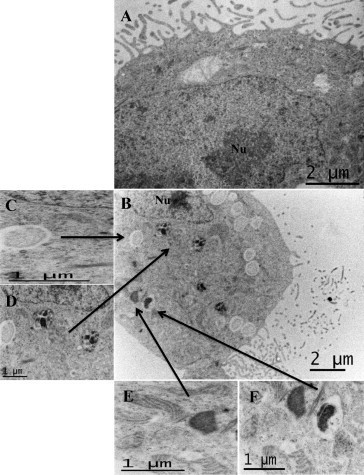 Transmission electron microscopy images of Caco-2 cells reflecting the initial stages of Campylobacter concisus UNSWCD infection. (A) Image shows characteristics of a Caco-2 cell. Microvilli are observed on the apical membrane surface, vacuolar compartments with no cellular material can be found between the apical membrane surface and the nucleus (Nu). (B) Image of a Caco-2 cell infected by C. concisus UNSWCD. Notable characteristics include lysosomal compartments, vacuoles and a Campylobacter-containing vacuole. (C) High magnification image of a Caco-2 cell vacuole. A granular compartment can be seen inside the vacuole. (D) High magnification image of two lysosomes showing a one layered membrane encapsulating dense granular material. (E) High magnification image of Caco-2 cell mitochondria and a densely stained bacterium. The mitochondria show a clear cristae lining and appear close to a bacterial cell, which may suggest a possible association between mitochondria and C. concisus UNSWCD in the formation and maturation of autophagosomes. (F) C. concisus UNSWCD within Caco-2 cells inside a Campylobacter-containing vacuole.