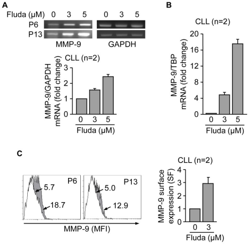 Fludarabine transcriptionally upregulates MMP-9 and induces its localization to the CLL cell membrane.(A,B) 10–15×106 CLL in RPMI/0.1% FBS cells from two different patients were treated with 3 or 5 µM fludarabine (Fluda) for 48 h and MMP-9 mRNA expression was analyzed by RT-PCR (A) and qPCR (B). Normalized average values (fold change) are shown. (C) 1.5×105 CLL cells from two different patients were incubated with or without 3 µM fludarabine for 48 h and MMP-9 surface expression was analyzed by flow cytometry. White areas, control/untreated cells; grey areas, fludarabine treated cells. Arrows indicate specific fluorescence (SF) values for each cell population. Normalized average values are also shown.