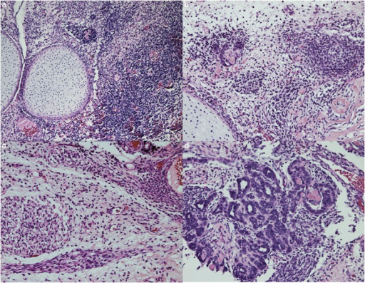 Unusual Wilms tumor in patient with germline DICER1 mutation and subsequent PPB. (a) Sheets of loose primitive blastemal cells and nodules of cartilage, (b) Primitive cartilage nodule emerging from primitive mesenchyme on left; (c) primitive spindled cells with skeletal muscle differentiation; (d) array of primitive tubules resembling seen primitive tubules in classic Wilms tumor (H&E; original magnification × 200 (a–d).