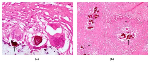 Photomicrographs showing calcified schistosome ova (short arrows), inflammatory giant cell (medium arrow), and granuloma surrounding the ova (long arrows), in the right tube.