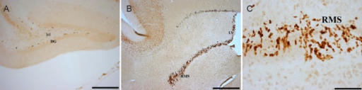 Representative photomicrograph of Ki-67 immunohistochemical staining in the various brain regions of four-striped mice.(A) DG; (B) subventricular zone and RMS. (C) A magnified image of the RMS showing the darkly stained neurons. Scale bars: 20 μm in A, 10 μm in B and 1 μm in C. DG: Dentate gyrus; RMS: rostral migratory stream; hil: hilum; LV: lateral ventricle.
