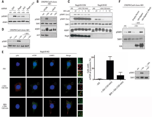 Arf1 is required for Gln signaling to mTORC1 in the absence of RagA and RagB(A) TORC1 activity was analyzed for the phosphorylation of Drosophila S6K1 (pdS6K1) in Drosophila S2 cells treated with double-stranded RNA (dsRNA) targeting GFP, RagA, or Arf1. Cells were starved of amino acids for 1 hour, then stimulated with or without amino acids for 30 min. (B) mTORC1 activity was analyzed by the phosphorylation of S6K1 (pS6K1) or mobility shift of 4EBP1 in RagA/B KO HEK293A cells treated with control (siCON) or Arf1 siRNA (siArf1). Cells were starved of amino acids then stimulated with Gln for 150 min. (C) mTORC1 activity was analyzed as in (B) in CON and RagA/B KO MEFs starved of amino acids, then pretreated with the indicated concentrations of BFA, and stimulated with amino acids for 150 min. Labels s.e. and l.e. denote shorter exposure and longer exposure, respectively. (D) mTORC1 activity was analyzed as in (B) in RagA/B KO HEK293A cells starved of amino acids, then pretreated with or without 1 μM BFA, and stimulated with Leu or Gln for 150 min. (E) IFanalysis depicting mTORC1 activation (pS6; orange) and lysosomal localization (LAMP2; red, mTOR; green) in RagA/B KO MEFs. Cells were starved of amino acids, pretreated with or without 1 μM BFA, followed by stimulation with Gln for 150 min. Higher magnification images of the area depicted by the inset and their overlays are shown on the right of the images. Quantification of the percentage of cells with mTOR at the lysosome under different conditions and corresponding Western blot (right). (F) mTORC1 activity was analyzed as in (B) in RagA/B KO HEK293A cells transfected with HA-Raptor or HA-Raptor containing the C-terminal CAAX motif of Rheb (HA-Raptor-C-Rheb). Cells were starved of amino acids, pretreated with or without 1 μM BFA, and stimulated with Gln for 150 min.