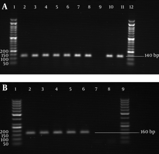 PCR AmplificationA) glyRS gene of M. catarrhalis strains. Lanes 2-8, isolated strains; lane 9, negative control; lanes 10-11, standard strains; lanes 1 and 12; 50 bp DNA marker. B) pdhC gene of N. lactamica strains. Lane 2, standard strain; lanes 3-6, isolated strains; lanes 7-8, negative controls; lanes 1 and 9, 50 bp DNA marker