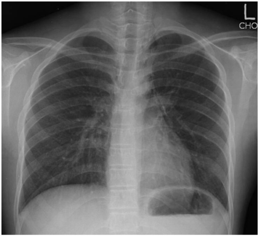 Spontaneous pneumomediastinum in a 16-year-old male patient. Postero-anterior radiograph demonstrates streaks of air outlining the mediastinal blood vessels, without evidence of rib fracture or pneumothorax.