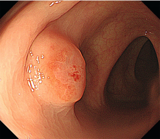 White-light endoscopy image showing an elevated lesion with a flat top similar to a submucosal lesion in the sigmoid colon in an 80-year-old man who presented with proctorrhagia.