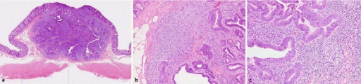 Histologic appearance of the lesion. Hematoxylin and eosin staining showed the following: a the lesion was located in the subepithelial layer in the panoramic view; b the infiltrative growth of a well-differentiated adenocarcinoma in the submucosal layer; c intense lymphocytic infiltrate surrounded the invasive, well-differentiated adenocarcinoma under high-power magnification. Some of the glands were partially cystically dilated.
