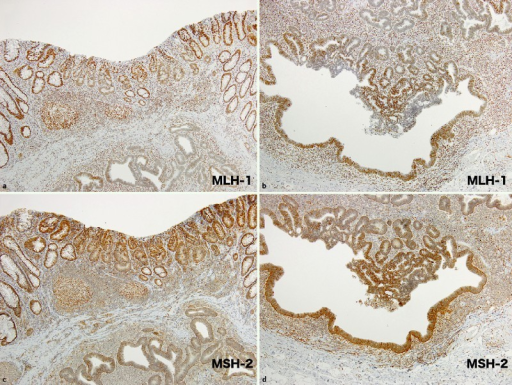 Immunohistochemical analysis of MLH-1 and MSH-2 protein expression in the tumor. The cancer cells and internal controls (lymphocytes) were positive for MLH-1 (a, b) and MSH-2 (c, d).