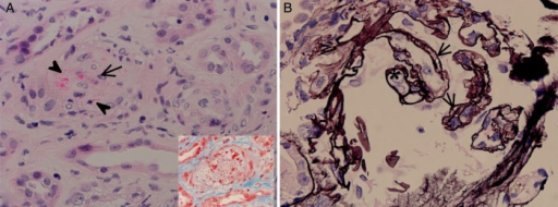 Features of ongoing TMA under treatment. TMA-type changes. These changes were very focal in the biopsy, and most arteries and glomeruli were essentially unremarkable or showed nonspecific 'ischemia/recovery' changes. (A) Focal small interlobular artery/pre-arterioles: luminal narrowing with pale mucoid edema (arrow), and endothelial cell reaction, with erythrocyte fragmentation and 'entrapment' (arrowheads) within the intimal layer, which shows myointimal widening and clearing of cytoplasm in the myocyte cell layer (H&E stain 40× magnifications). Adjacent renal tubules show features of acute tubular injury. The inset figure shows a trichrome stain (60× magnification), which enhances the fragmented erythrocytes (the hallmark finding of microvascular hemolysis) in red and a pale intima with no significant collagen deposition (which would have stained blue). (B) Glomerulus: capillary loop 'double-contours' [arrow, sharp silver positive (black) linear staining on each of the capillary loop sides, which does not stain in between them], which indicate glomerular basement membranes reduplication response to endothelial damage (note the 'plump' endothelial cell occlusion, asterisk). Also noted is ischemic wrinkling ('collapse'—arrowhead) of other glomerular capillary loops (Jones methenamine silver stain, 60× magnification). BC (Bowman's capsule).