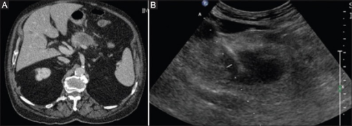 (A) Contrast-enhanced computed tomography reveals the presence of the pancreatic tumor. (B) Antenna for microwave ablation within the lesion, positioned under ultrasound guidance