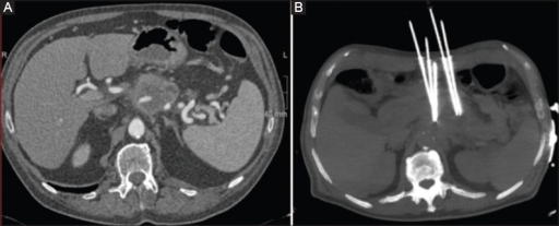 (A) Contrast-enhanced computed tomography reveals the presence of the pancreatic tumor. (B) maximum intensity projection (MIP) reconstruction demonstrates the presence of 5-needle for irreversible electroporation