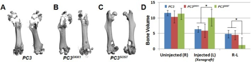 SOST reduces PC3-mediated osteolysis in xenograft derived tumor lesions.Representative femur micro-CT scans from PC3 (A), PC3DKK1 (B) and PC3SOST (C) injected NSG mice (N = 6/group). Bone volume was quantified for both PC injected and uninjected contralateral femurs, and relative bone loss due to osteolysis was calculated for each group by subtracting the injected (L) from the uninjected (R) values (D). PCSOST injected femurs experienced significantly less bone loss due to advanced osteolytic lesions (*p<0.05).