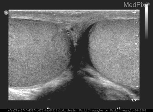 Transverse gray-scale sonographic image through the testes reveals normal appearing testes with homogeneous echotexture.