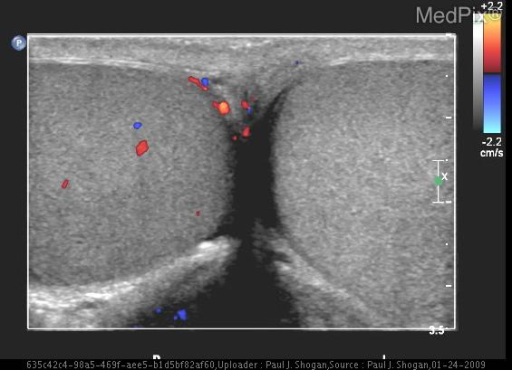 Color Doppler sonographic image through the testes reveals absent perfusion to the left testicle.
