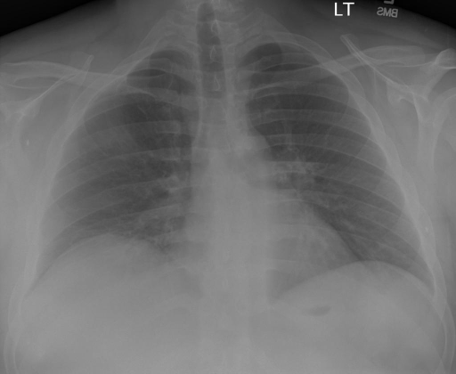 PA AND LATERAL VIEWS OF THE CHEST dated XXXX XXXX hours