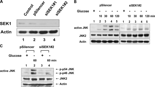 Glucose deprivation–induced JNK activation in control plasmid (pSilencer) or pSilencer-siSEK1 stably transfected DU-145 cells. (A) Immunoblot of SEK1 expression in control vector–transfected (pSilencer) or pSilencer-siSEK1 stably transfected (siSEK1#1 and siSEK1#2) single cell clones from DU-145 cells. Lysates containing equal amounts of protein (20 μg) were separated by SDS-PAGE and were immunoblotted with anti-SEK1 antibody. Control, untransfected cells. (B and C) Control plasmid or pSilencer-siSEK1 stably transfected cells were exposed to glucose-free medium for various times (10–120 min; B) or for 60 min (C). After incubating, cells were harvested, and Western blot analysis was performed with anti–ACTIVE JNK, anti-JNK2, or antiactin antibody as the loading control.