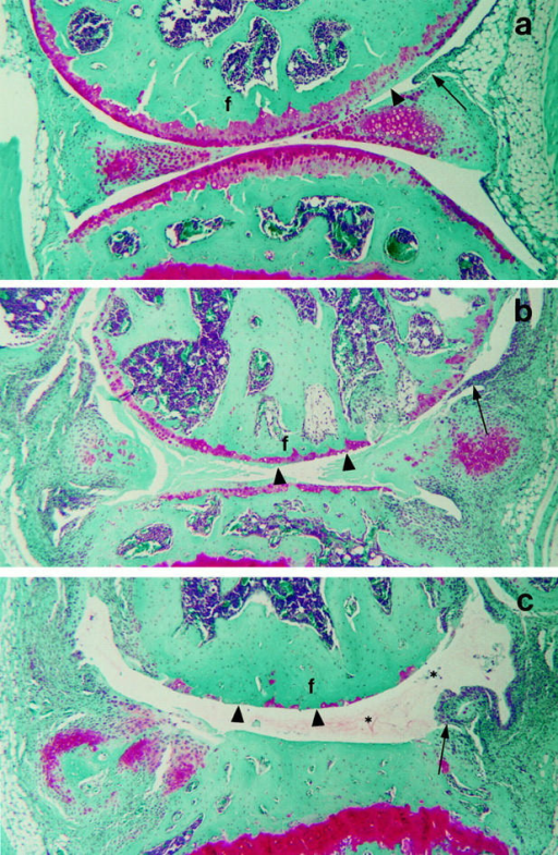 Light microscopy of  the knee joint from FLAP −/−,  +/−, and +/+ mice. In the  FLAP knockout mice (a) there is  an absence of inflammatory cells in  the synovial tissue surrounding  the joint cavity. An occasional  pannus tongue (arrow) was observed and tongues generally  lacked a large cellular component.  The femoral condyle (  f  ) articular  cartilage was intact, although regions of proteoglycan depletion  (arrowhead) were observed and  these typically coincided with the  pannus extensions. In the heterozygous mice (b), the articular  cartilage was removed down to the  tidemark (arrowheads) over large regions of the femoral condyle (  f  ).  Several pannus tongues (arrow)  and an increased inflammatory cell  influx into the surrounding synovial tissue were observed. In the  wild-type mice (c), the destruction  of the femoral condyle (  f  ) articular  cartilage (arrowheads) was much  more extensive. In addition, some  plasma proteins and cells (*) were  observed within the joint cavity.  The pannus tongues (arrow) and increased cellularity of the synovial  tissue were similar to that observed  in the heterozygous mice. Original  magnification, ×60.