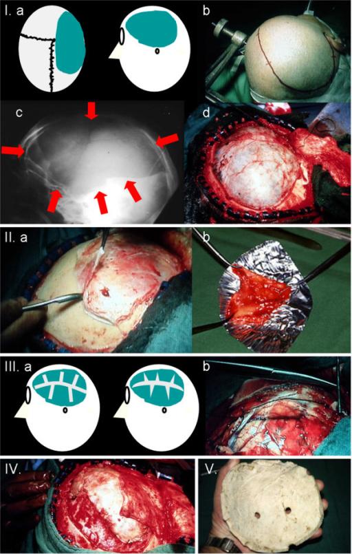 hemicraniectomy external decompressive surgery techniq open i