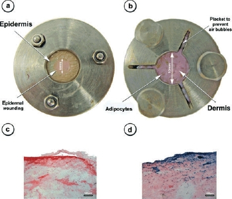 Skin culture model. The images of the upper row show the stainless steel chamber model from the epidermal (a) and the dermal (b) side of view. The macroscopic appearance of the epidermal wounding procedure is also displayed (a). After 4 weeks of culture and partial depletion of the epidermal layer, skin specimens have been topically transduced by using 108 IU of LacZ-adenoviral vectors. Samples were taken further 2 days later and transgene expression was visualized by using X-gal staining. Only tissue specimen with removed epidermis showed transgene expression after the topical application of the virus (d, blue-stained cells), indicating intact skin barrier only for tissue without epidermolysis (c). Images are at 100-fold magnification; scale bar displays 100 μm.