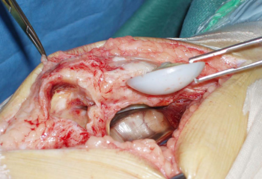 Extracted patellar prosthesis with cavity in the patellar tendon.