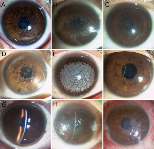 Representative Corneal Phenotypes As Shown By Slit Lamp Examination. The  Proband Of GCD1 Family HCD