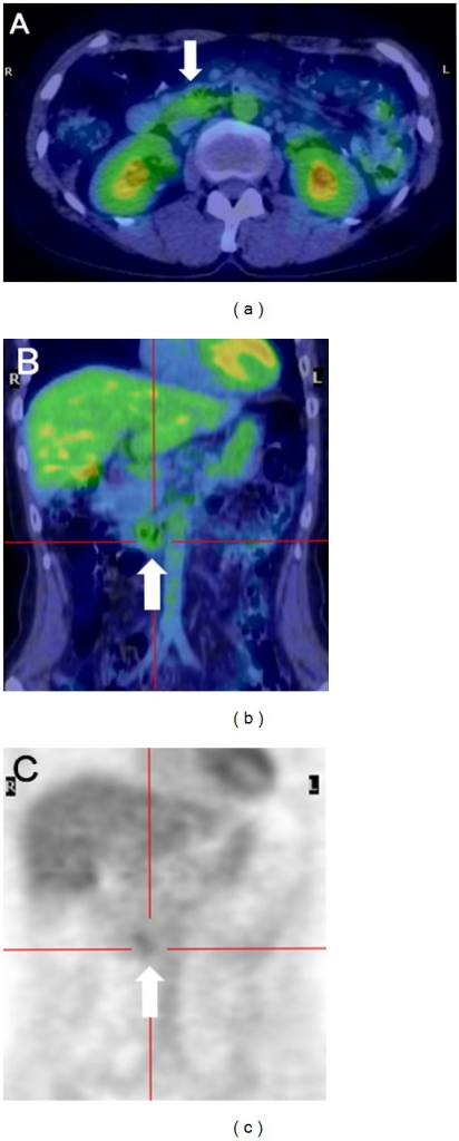 18F-FDG PET images of the patient. Positive tracer uptake in the duodenum was shown in the horizontal section ((a), arrow) and coronal sections ((b, c), arrows). No abnormal uptake in other organs including the lymph nodes was detected.