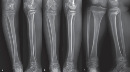Characteristic patterns of physeal closure in 2 patients in group L (panels A and B) as compared to that for a patient of similar age in group C (panel C). The radiographs of a 13-year-old boy after 8.9 cm of lengthening (55%; panel A) and of a 12.8-year-old girl after 9.3 cm of lengthening (60%; panel B) showed premature closure of the lateral portion of the anterior proximal physis with relatively preserved distal physis. No physeal closure could be seen in the radiographs of a 13.1-year-old boy in group C (panel C).
