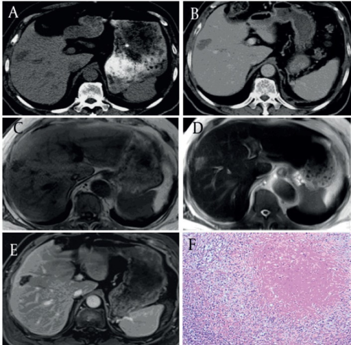 Pure Coagulation Necrosis Type of Solitary Necrotic Nodules (SNN) in a 45-Year-Old Woman (black arrow)(A) Pre-contrast CT image of the right liver lobe; the SNN is a hypo-attenuated mass compared with the liver parenchyma. (B) Post-contrast CT image at the portal venous phase; the lesion shows no enhancement except for mild peripheral capsule enhancement. (C) By transverse T1WI, the SNN is hypo-intense relative to the liver parenchyma. (D) By transverse T2WI, the SNN is slightly hyper-intense relative to the liver parenchyma. (E) Contrast-enhanced T1WI at the portal venous phase; it shows no enhancement of the lesion except for moderate peripheral capsule enhancement. (F) Histology of the liver biopsy sample showed central necrotic tissue surrounded by a borderline zone containing infiltrating inflammatory cells and fibrotic changes. The outer layer shows normal hepatocytes (hematoxylin-eosin stained section, original magnification x100).