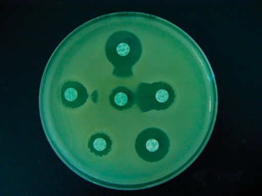 Positive result of the modified DDST in an ESBL-positive strain of Klebsiella pneumoniae.