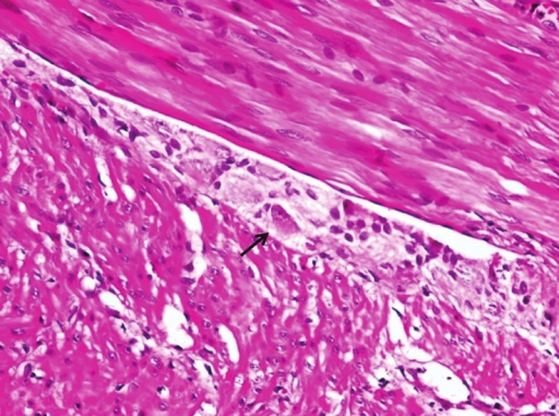 Hematoxylin and eosin section with ganglion cell (arrow) (H and E, 10×)