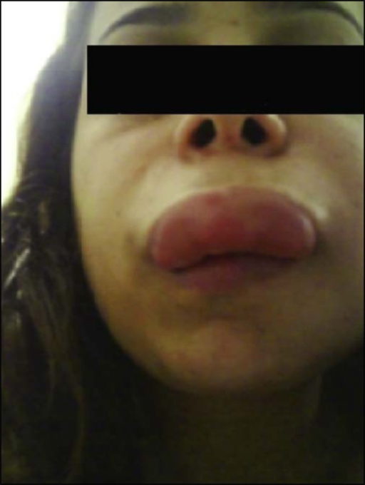 Severe edema on the upper lip, with deformation of the anatomy of the face