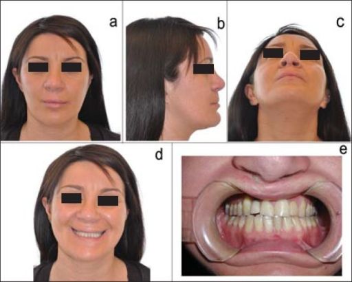 (a-e) Postoperative frontal, lateral, axial, frontal smile and intraoral images after Le Fort I osteotomy (upward 1 mm, forward 1 mm right, 3 mm left), bilateral sagittal split osteotomy, open rhinoplasty and upper lip coleman graft